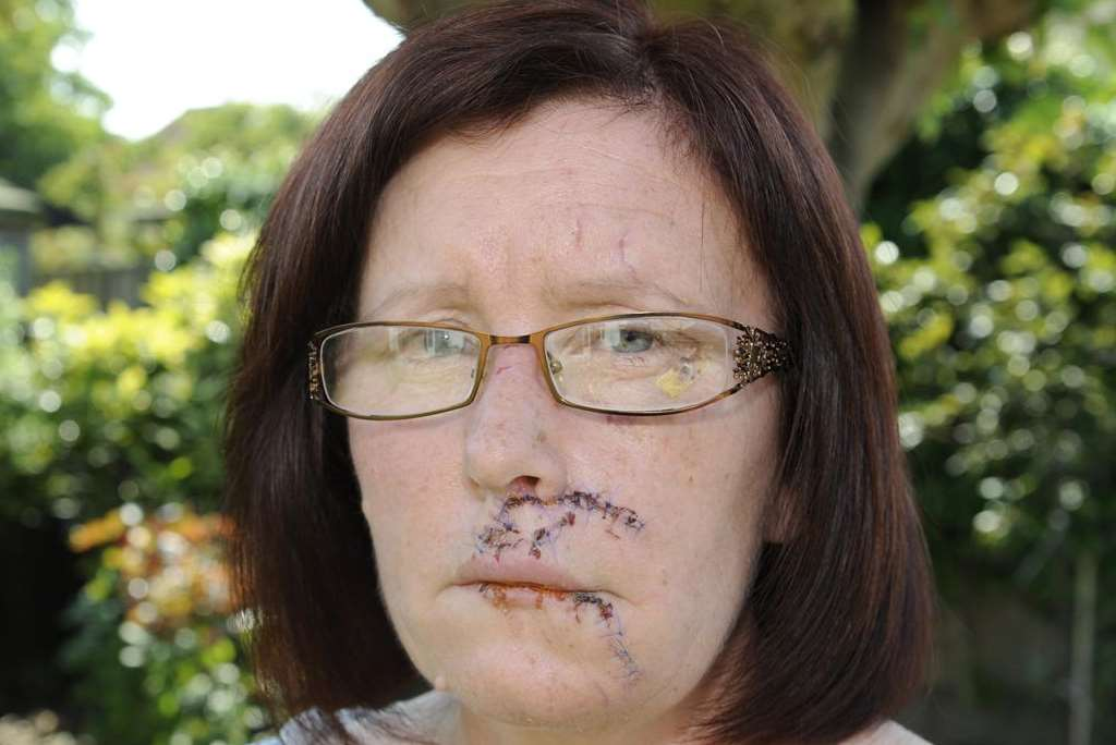 Angie Winterton from Selsey Avenue, Herne Bay, who injured her face falling off of her bike