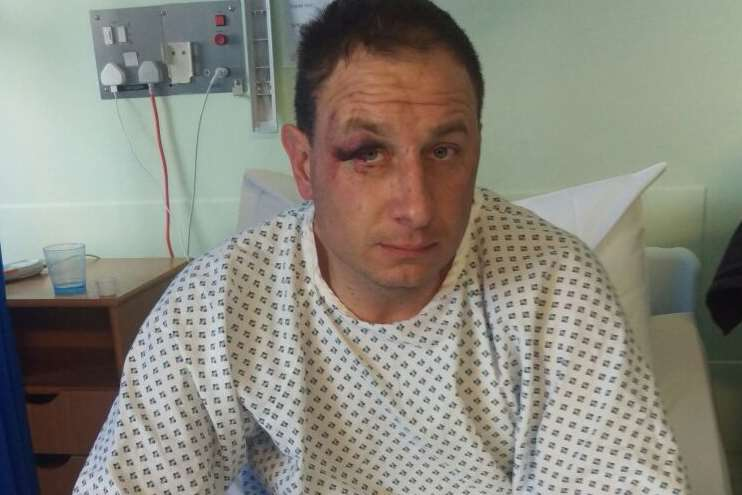 Lee Terry in hospital after the incident outside the Jolly Knight