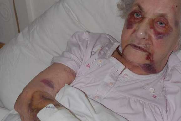 Victim Jean McDougall suffered a broken nose and eye socket, a fracture to the base of her spine and other injuries