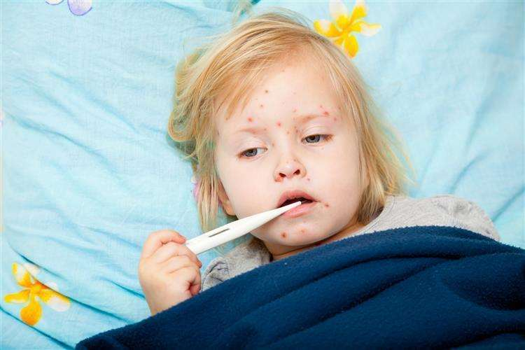 The number of reported measles cases in Kent has fallen. Picture: Thinkstock