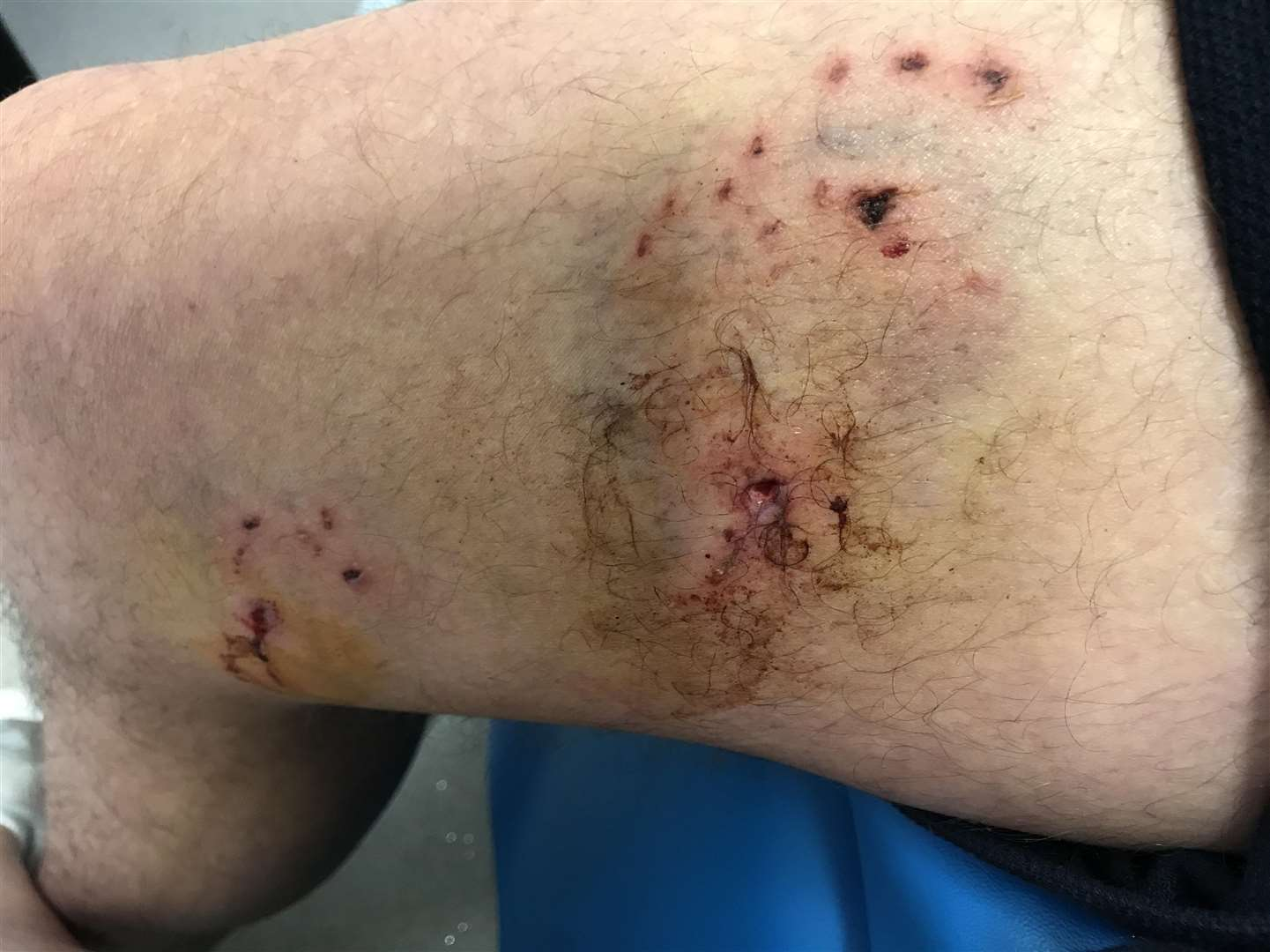 David Turner was bitten on the hand and leg during a vicious attack in Sevenoaks
