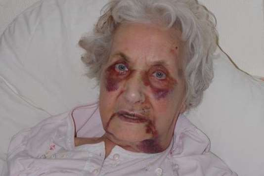 Jean McDougall suffered black eyes and multiple injuries after a savage beating by teenager Aron Davis