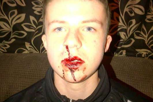Teenager Aaron Scanlan needed an operation for a broken nose after the assault