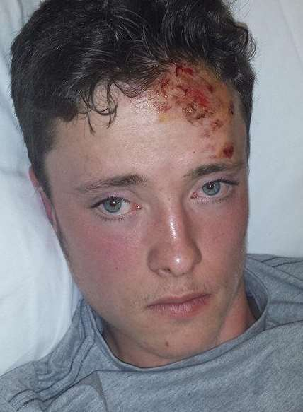 Teenager Dominic Evans was left with tyre marks on his body after a hit-and-run