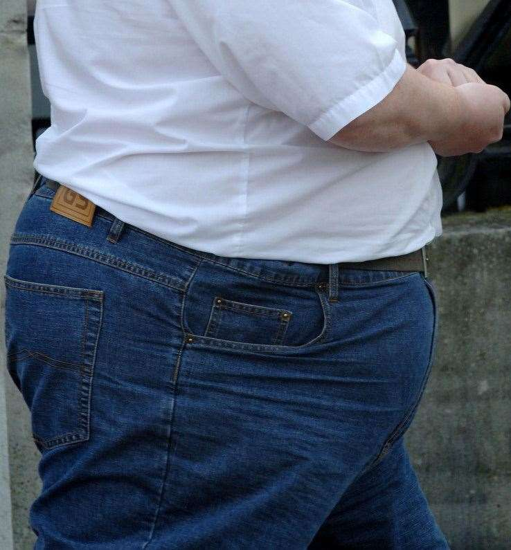 Medway has the highest number of people having bariatric surgery for obesity in the South East
