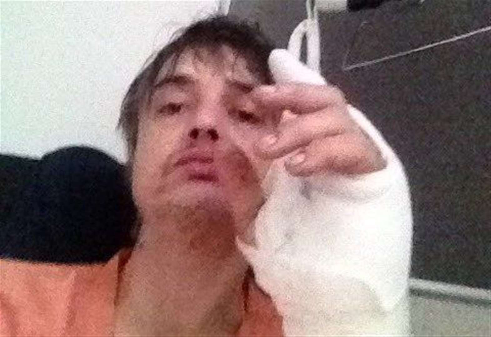 Pete Doherty hospitalised after hedgehog injury