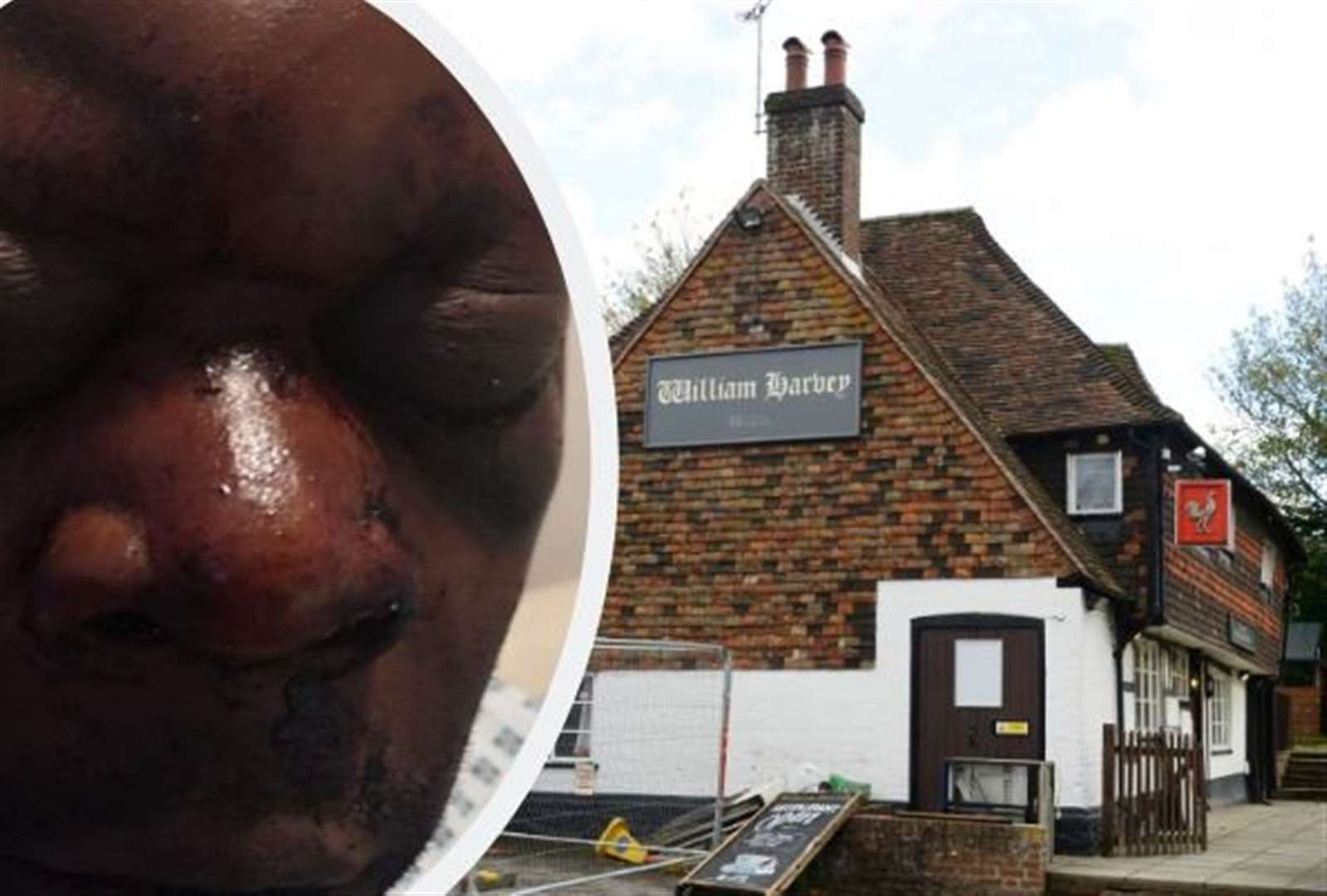 Man revived after pub attack