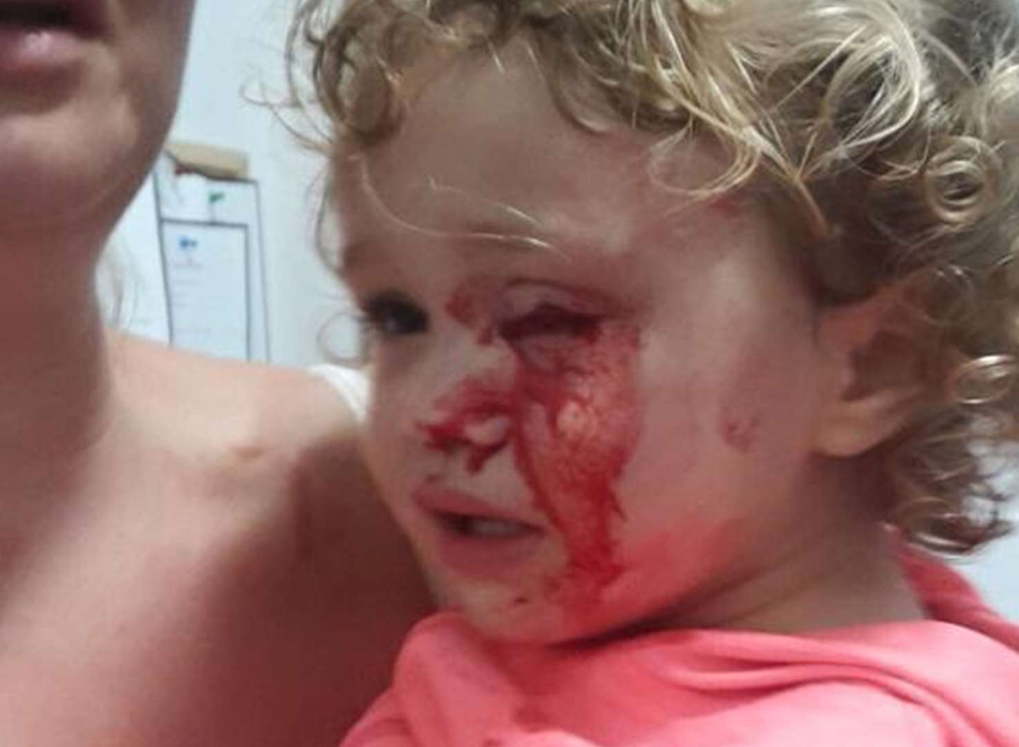Toddler's horrific eye injury in freak store accident