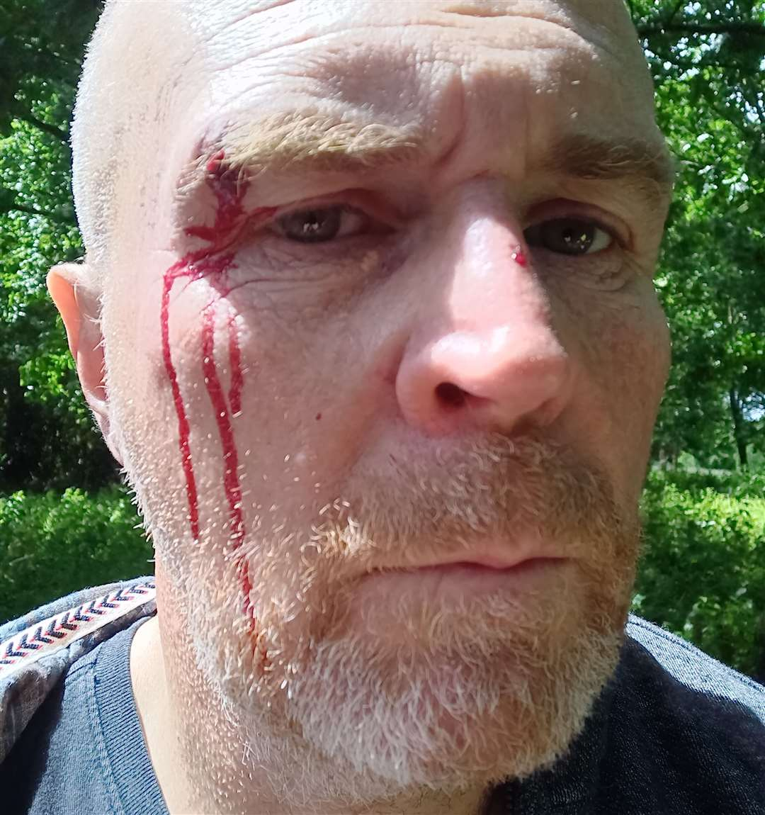 Brian Woodhouse was attacked in front of his two daughters in Ashford Road, Hollingbourne