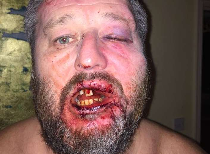 Pete Hancox's battered face after the unprovoked assault