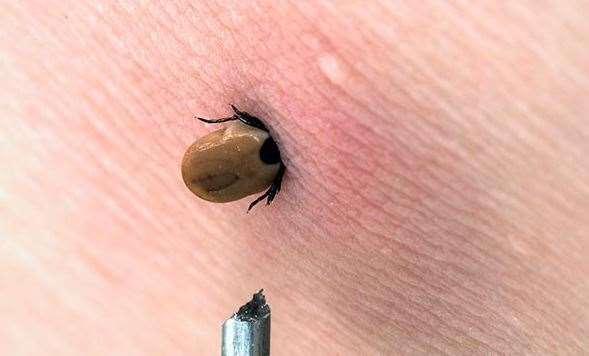 Ticks are parasites that burrow into their hosts to suck their blood. Picture: Google