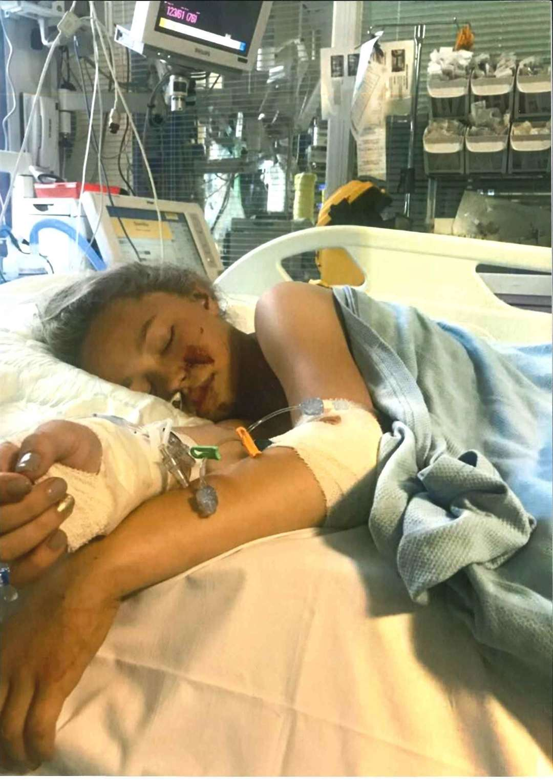 Gracie Maddox at King's hospital on life support following a tragic accident on Fleet Estate, Dartford on June 26, 2017. Picture: Caitlin Webb, Local democracy reporter (4147229)