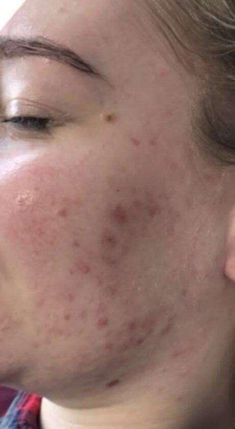 Kelly Chaplin's skin was prone to breakouts before in her early 20s