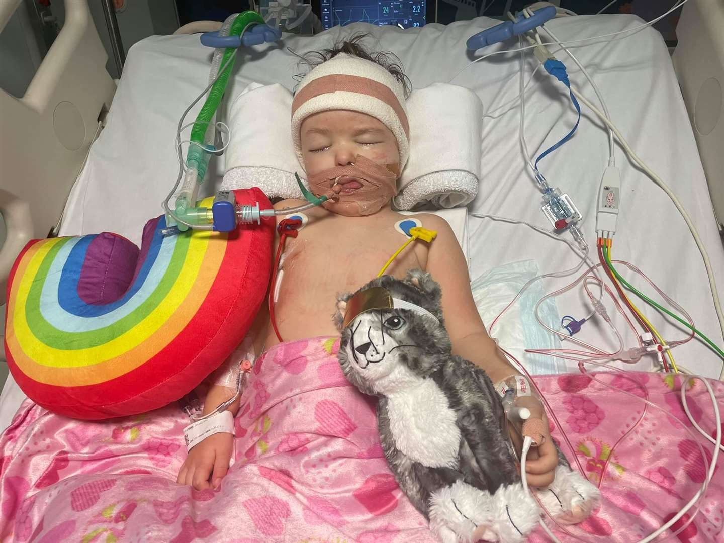 Izzy has been placed on a ventilator for support. Photo: Isobel's Army Facebook Page