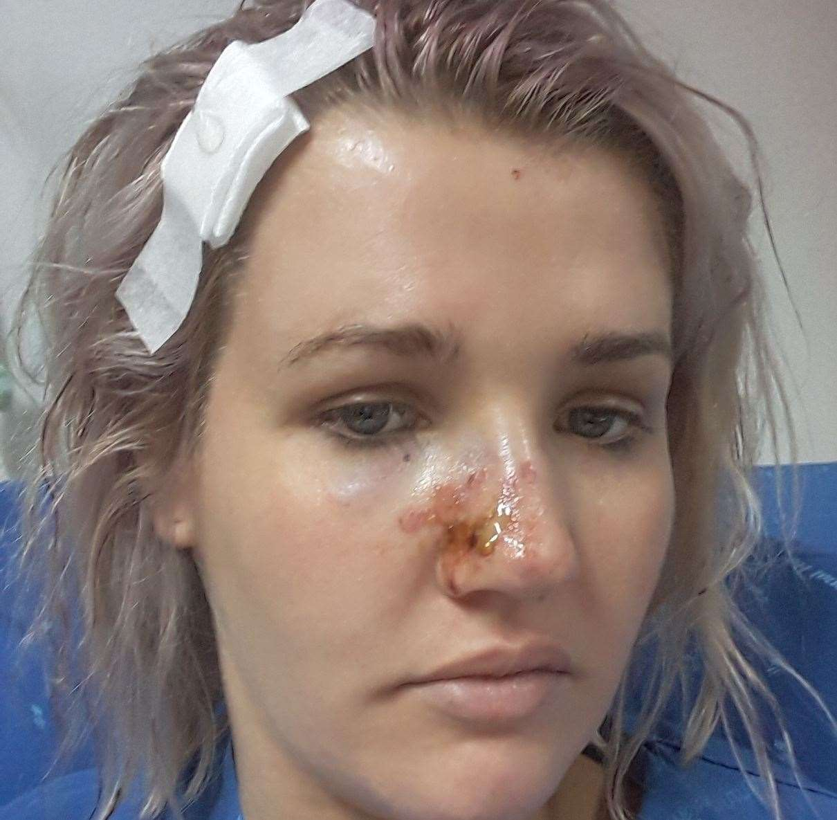 Abi Harrison was left battered and bruised after a motorbike crash in Thailand