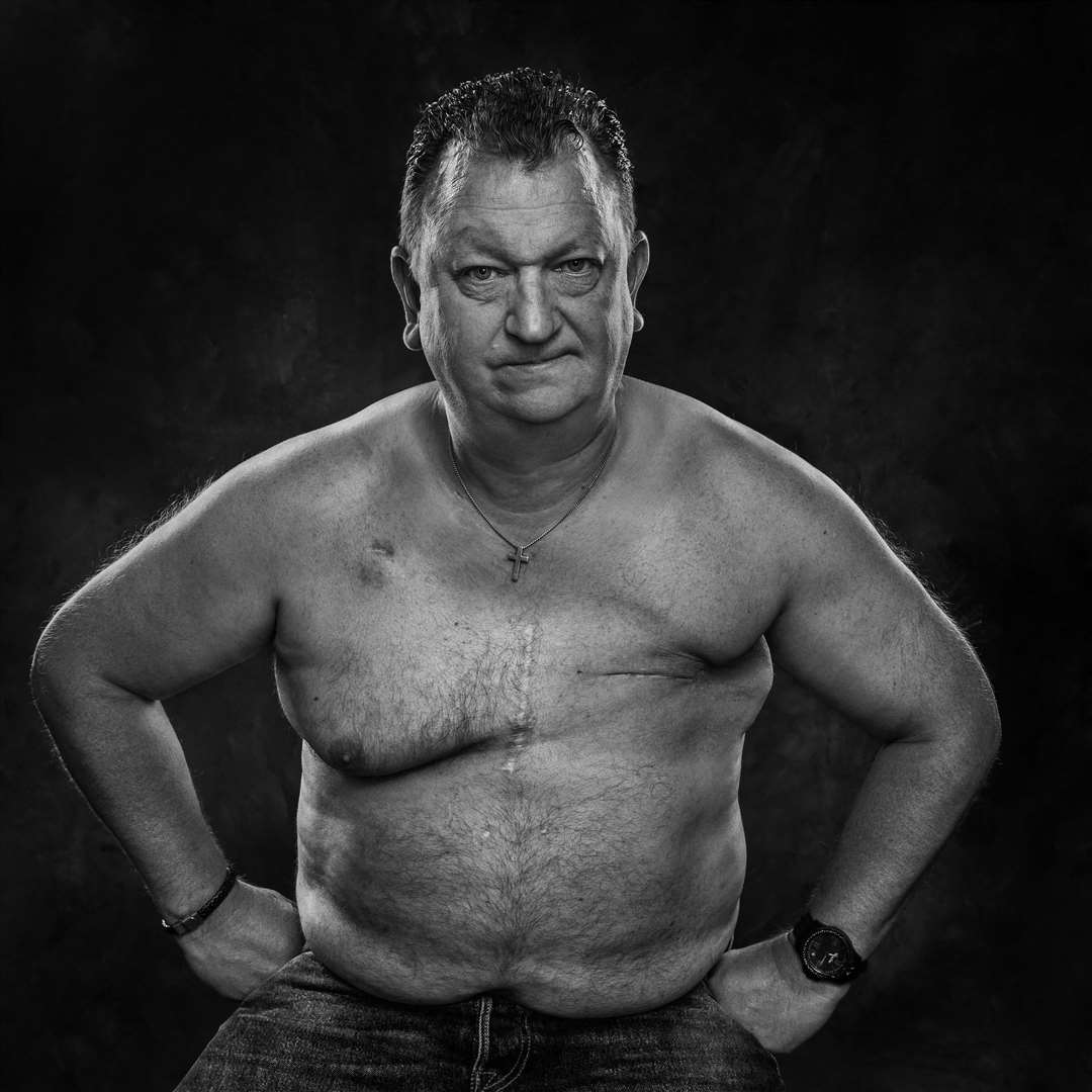 Imelda Bell's portraits of cancer patients. Pictured is Stuart who also had breast cancer