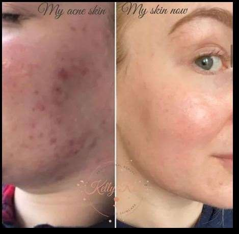 A before and after the transformation of Kelly's skin
