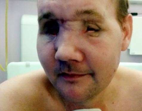 Andrew suffered severe facial injuries when an oil drum he was cutting with a plasma cutter exploded