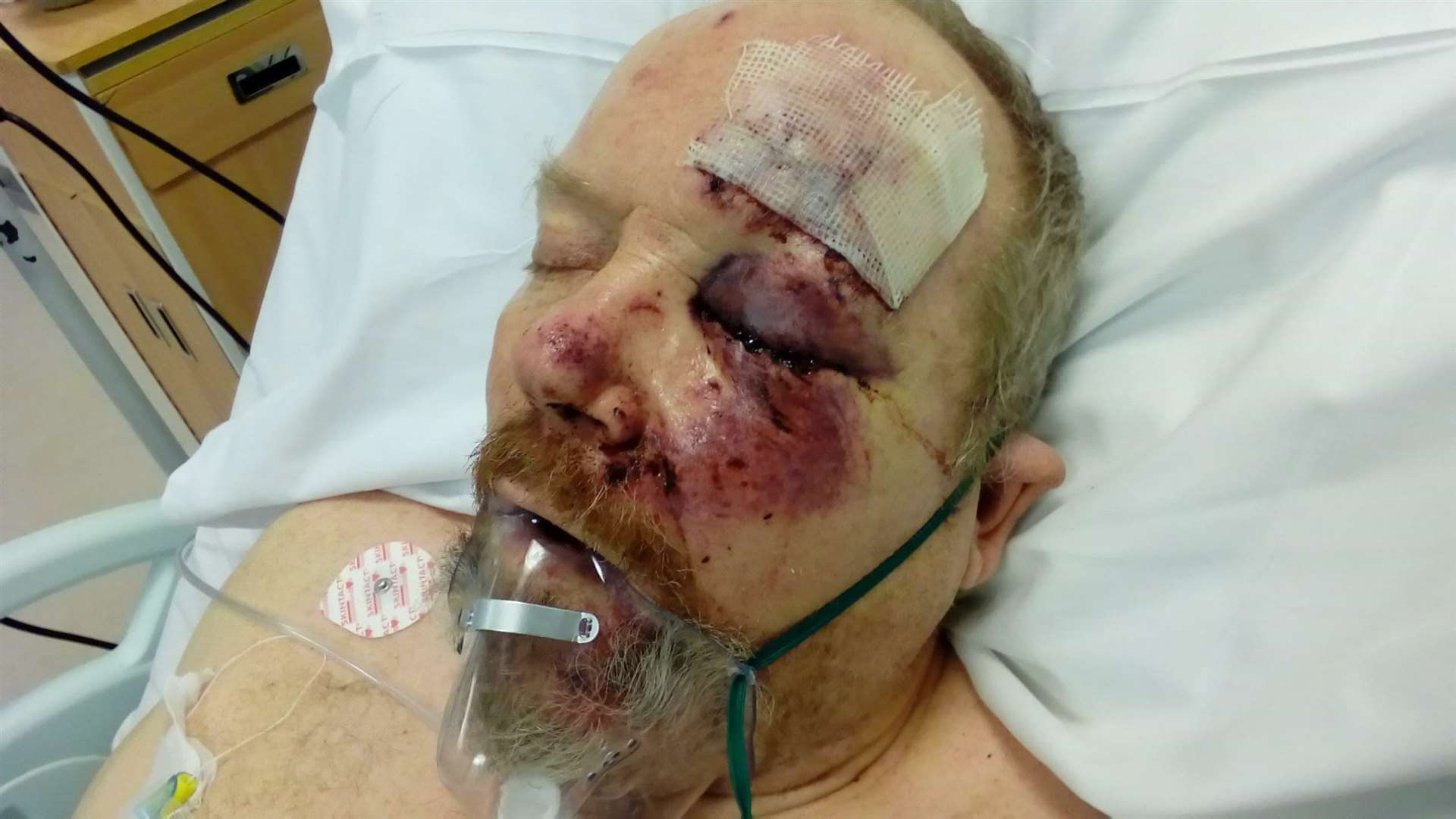 Vince Marsh suffered serious injuries (3536634)