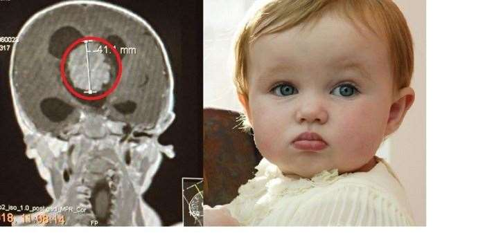 Doctors discovered a 4cm tumour in 15-month0old Octavia's brain