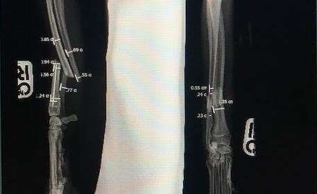 An x-ray of Steve's injury
