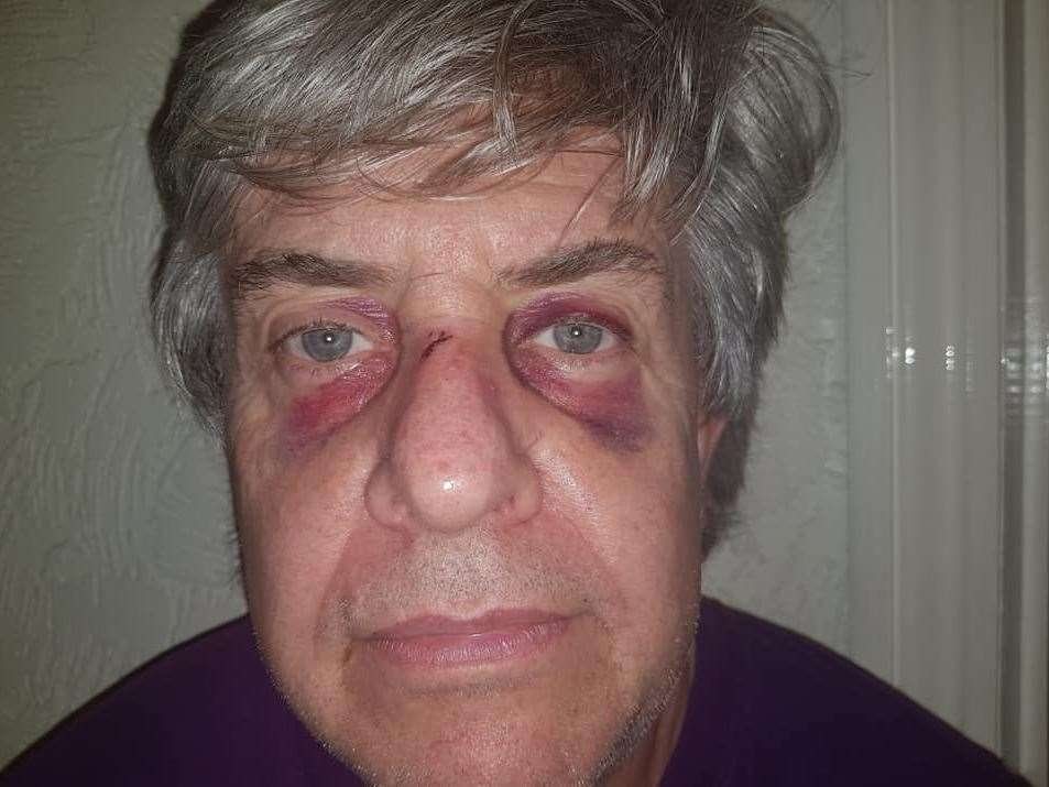 Peter Cook was left with black eyes after the attack