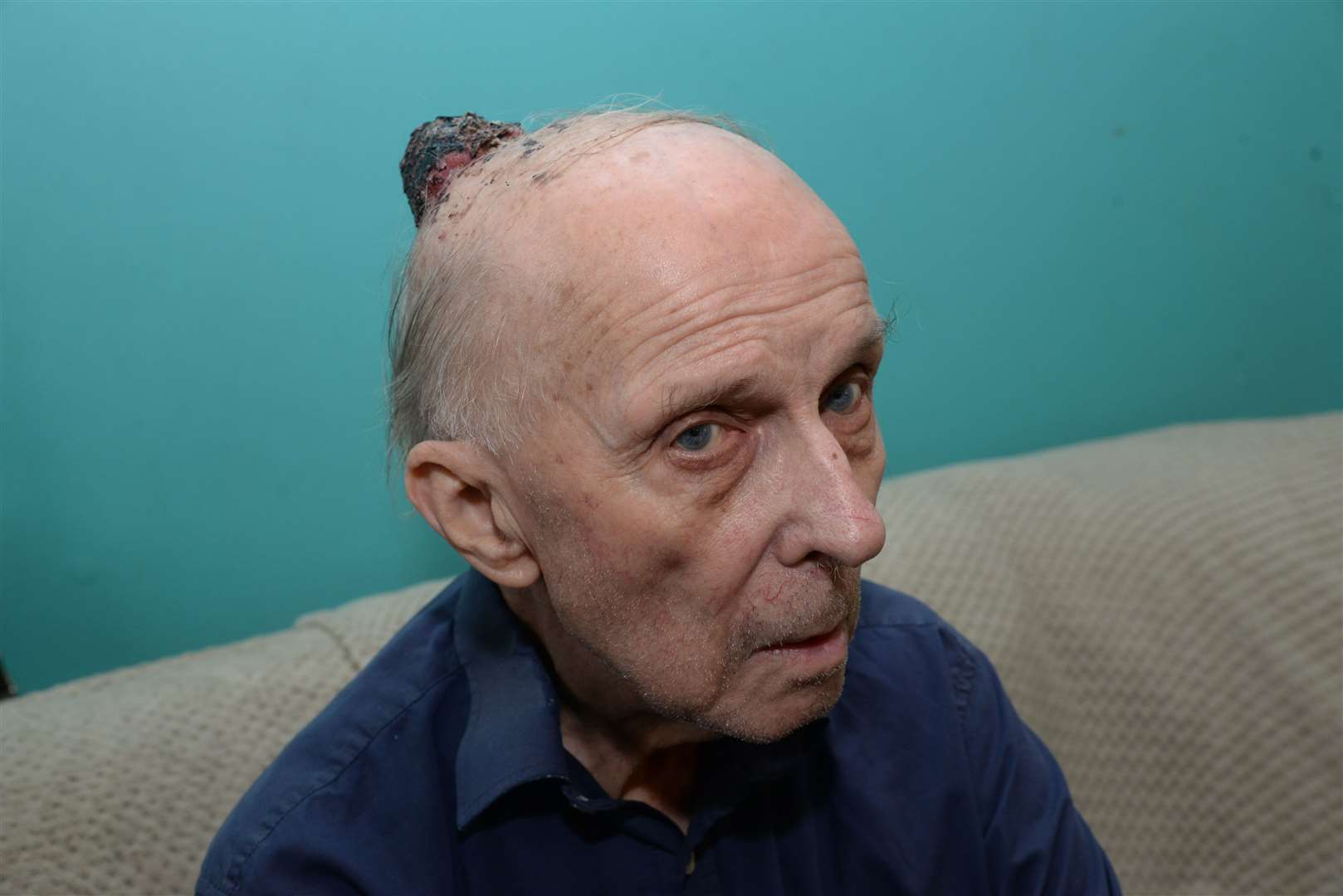 George Hobbs from Gillingham has been left with a huge growth on his head that turned out to be skin cancer. Picture: Chris Davey