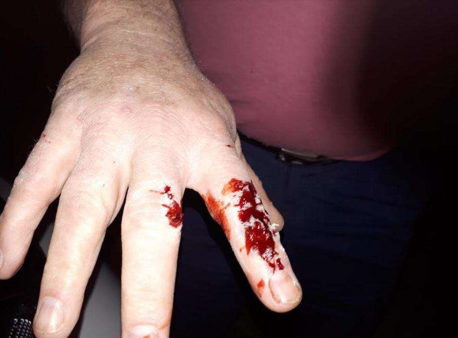 Jon Barrett's cut finger following the horrific incident (7616014)